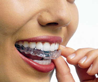 ortodonzia invisibile torino