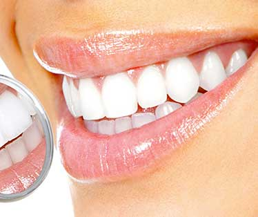 sbiancamento denti torino