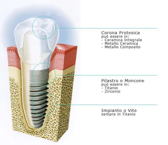 impianto dentale torino