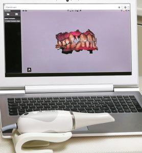 Dentista Torino - lo scanner intraorale