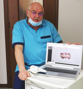 Dentista Torino - Impronte digitali