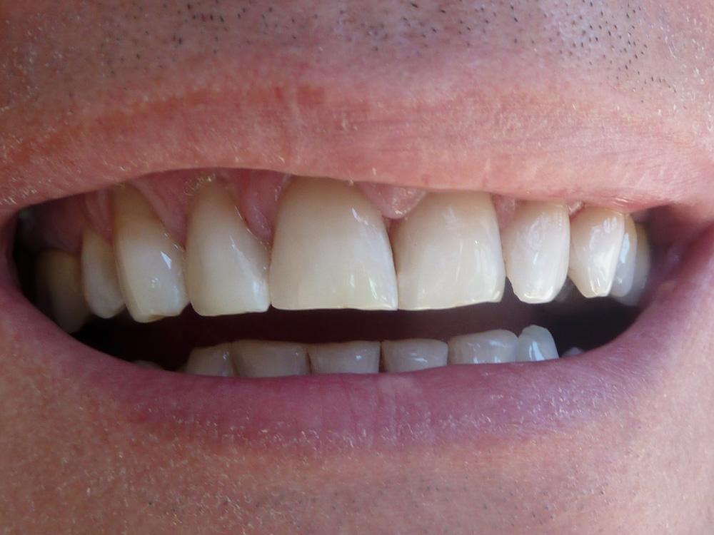 sbiancamento denti dopo